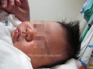 乳児湿疹ママケア手帳