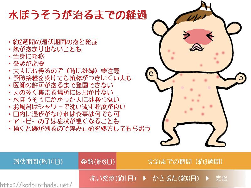 babychickenpox
