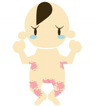 赤ちゃんのとびひにママが気をつけておきたいこと