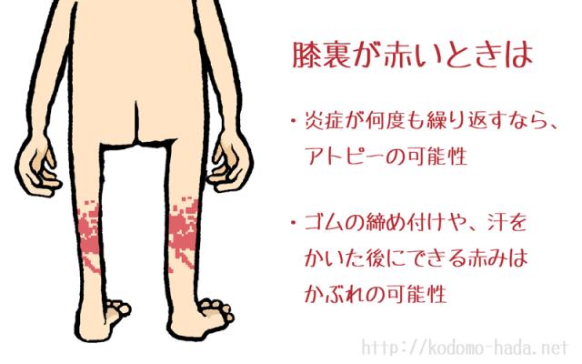 幼児の膝裏が赤い原因はアトピーだけではない理由