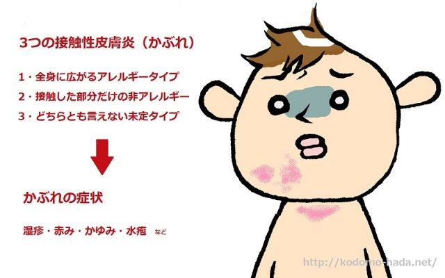 子供の接触性皮膚炎には3つのタイプがある
