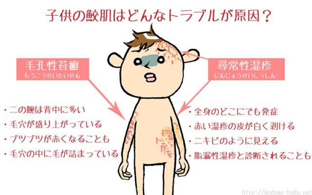細かいブツブツとした💦子供の鮫肌の原因と症状