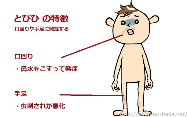 感染に要注意!子供のとびひの症状と原因