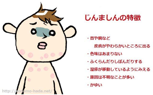 とっても痒い子供の蕁麻疹の症状と原因