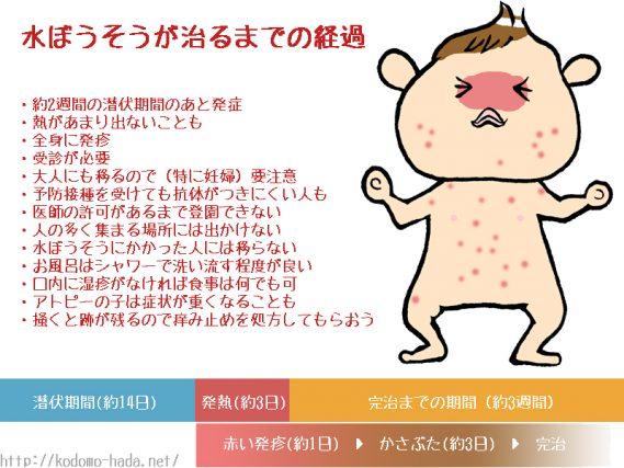 赤ちゃんの水疱瘡の症状と原因について