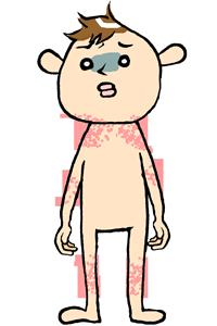 すぐにできる子供の汗疹の原因とホームケア方法