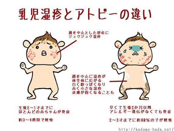 乳児湿疹になった子はアトピーに移行しちゃうの?