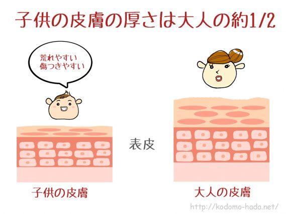 赤ちゃんの肌荒れを改善させるために必要な3つのこと