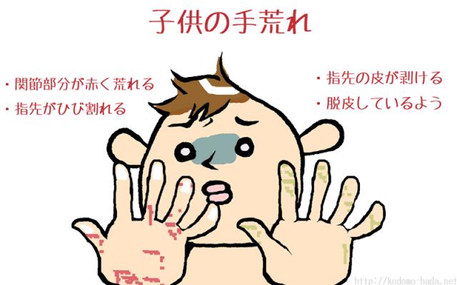 手荒れが起きやすい子供の特徴4つ