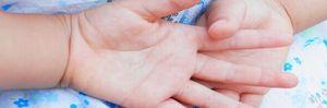 見逃してしまいがちな2歳児の乾燥肌の症状と原因