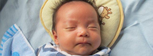 生後1ヶ月の赤ちゃんに起こりやすい湿疹の症状と原因