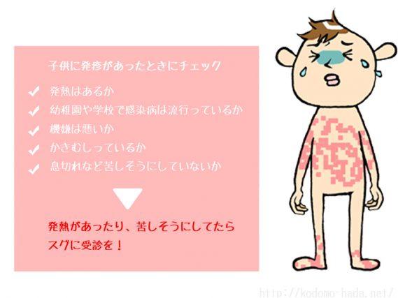 子供の発疹の症状と原因について